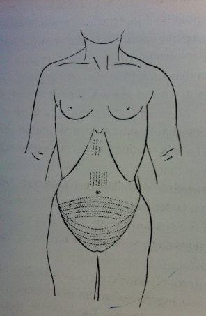Drawing-of-tattoos-on-Amunet-mummy-Dr.-Daniel-Fouquet-1898